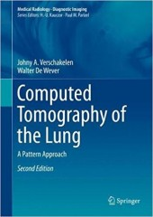 Computed Tomography of the Lung:A Pattern Approach, 2/e