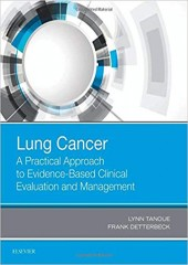 Lung Cancer: A Practical Approach to Evidence-Based Clinical Evaluation and Management