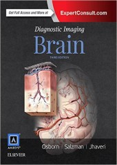 Diagnostic Imaging: Brain, 3/e