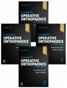Campbell's Operative Orthopaedics 4-Volume Set, 14th Edition